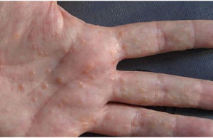 How to Reduce Dyshidrotic Eczema