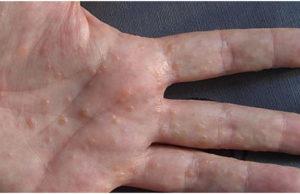 How to Reduce Dyshidrotic Eczema
