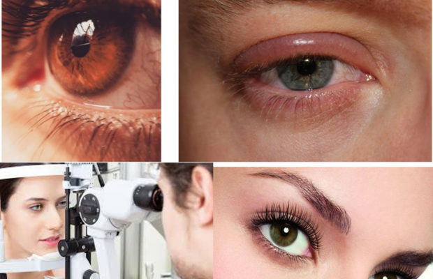 Eyecare: Ophthalmology, Eye examination, Common disorders, it's Symptoms, Treatment