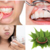 Receding Gums: Causes And Home Remedies