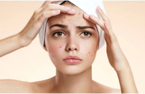 How To Get Rid Of Acne Scabs
