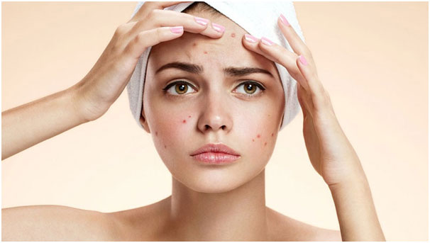 HowTo Get Rid Of Acne Scabs