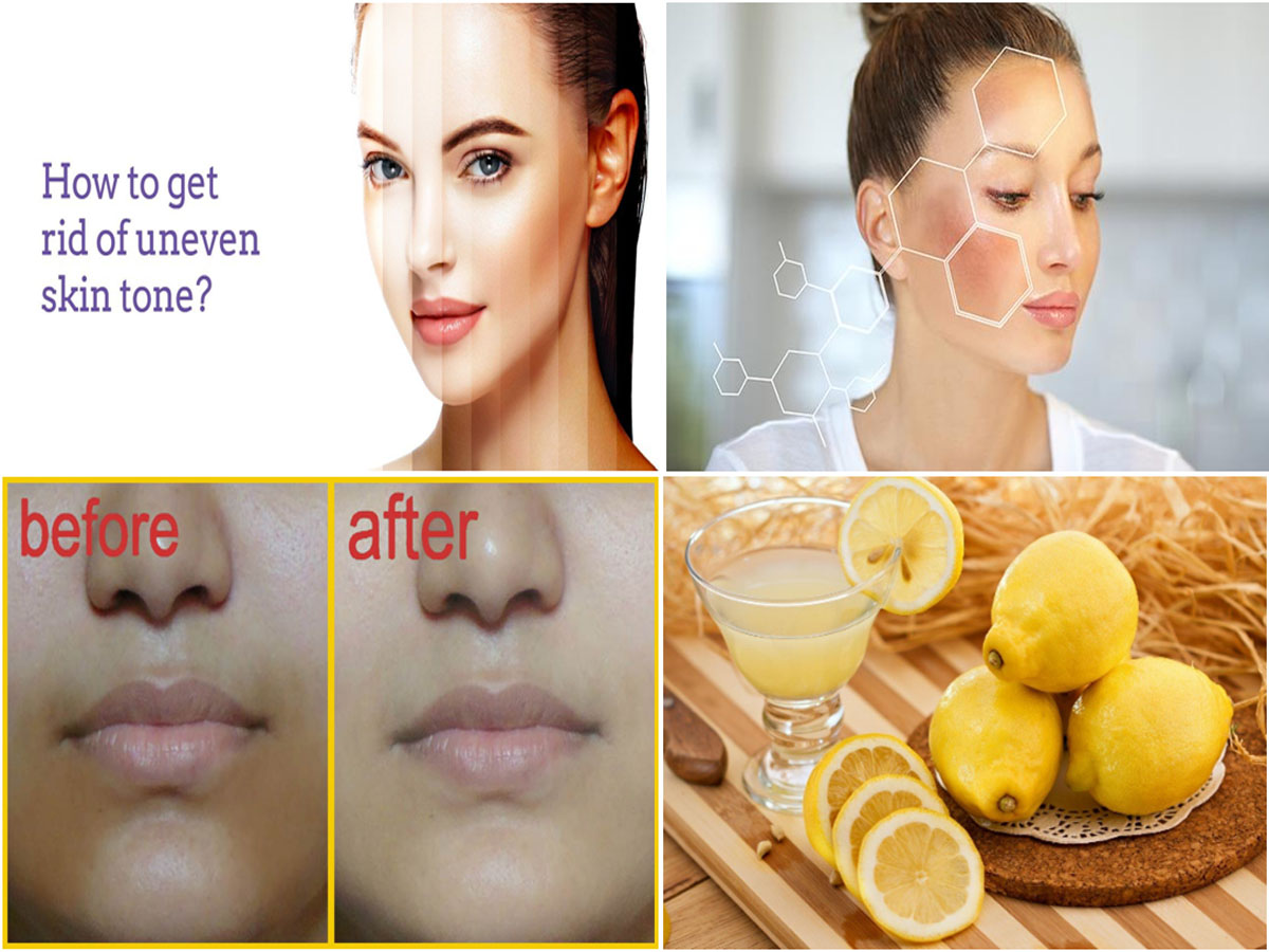 How to Deal with Uneven Skin Tone Naturally