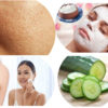 Natural Home Remedies for Open Pores on Face