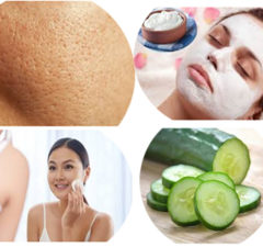 Home Remedies for Open Pores on Face