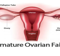 What is Premature Ovarian Failure