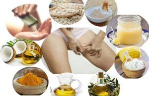 Home Remedies That Cures Chafing