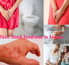 Toxic Shock Syndrome In Female: Causes And Prevention