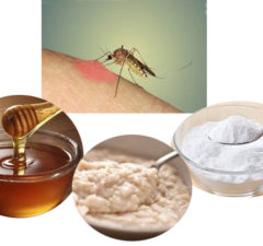 Treating mosquito bites with Home remedies