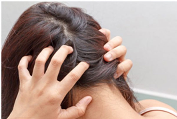 How You Can Combat An Itchy Scalp