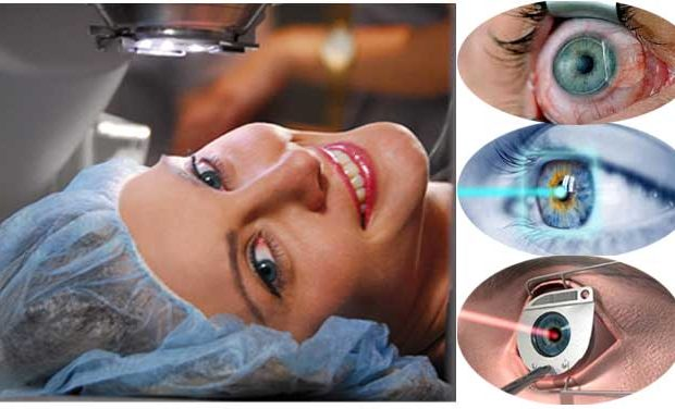 A Complete Guide to LASIK Eye Surgery