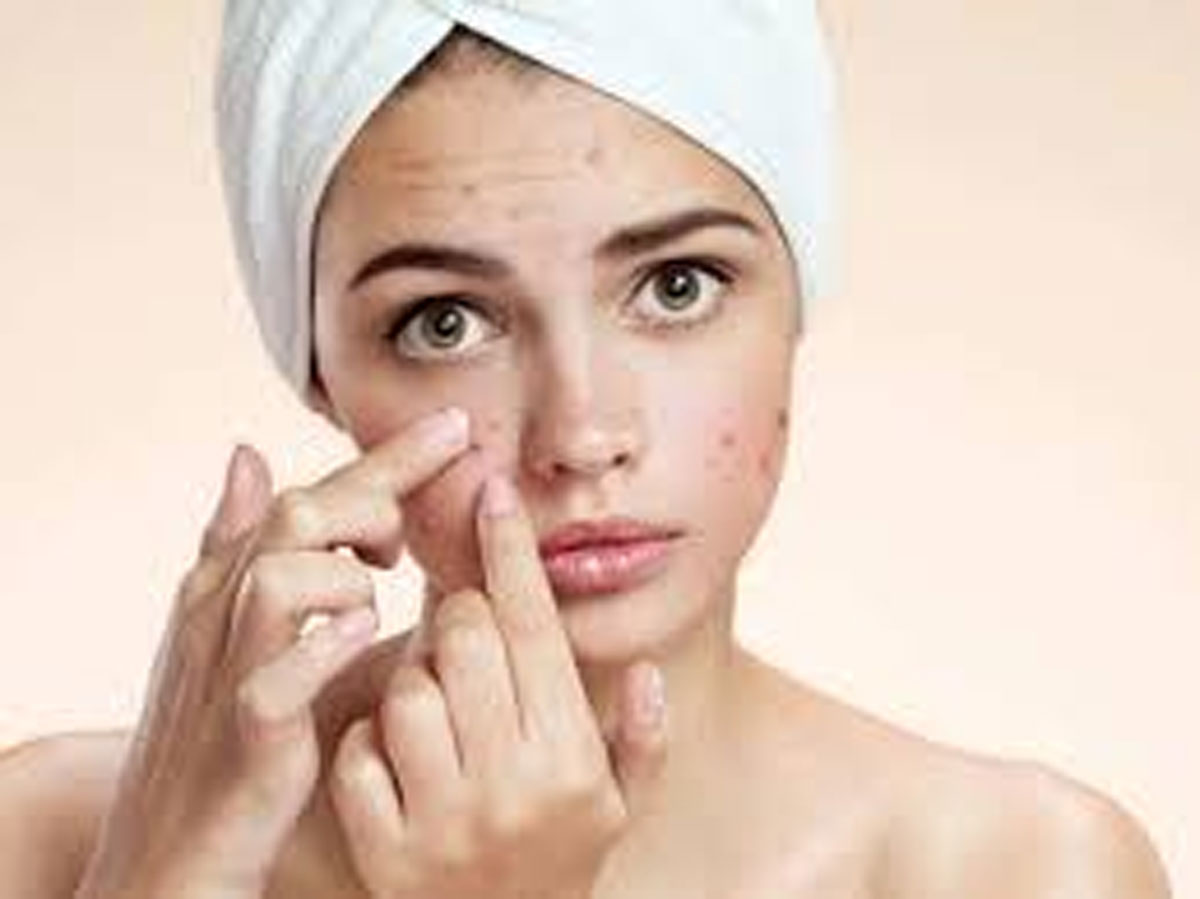 How to Reduce Acne