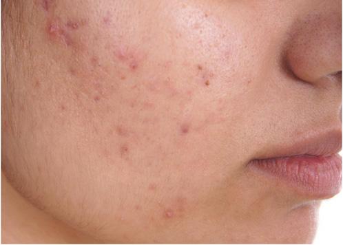 Acne - Symptoms Of Hormonal Imbalance