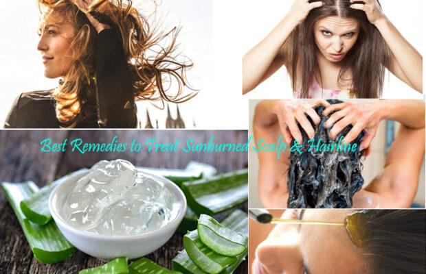 Best Remedies to Treat Sunburned Scalp & Hairline