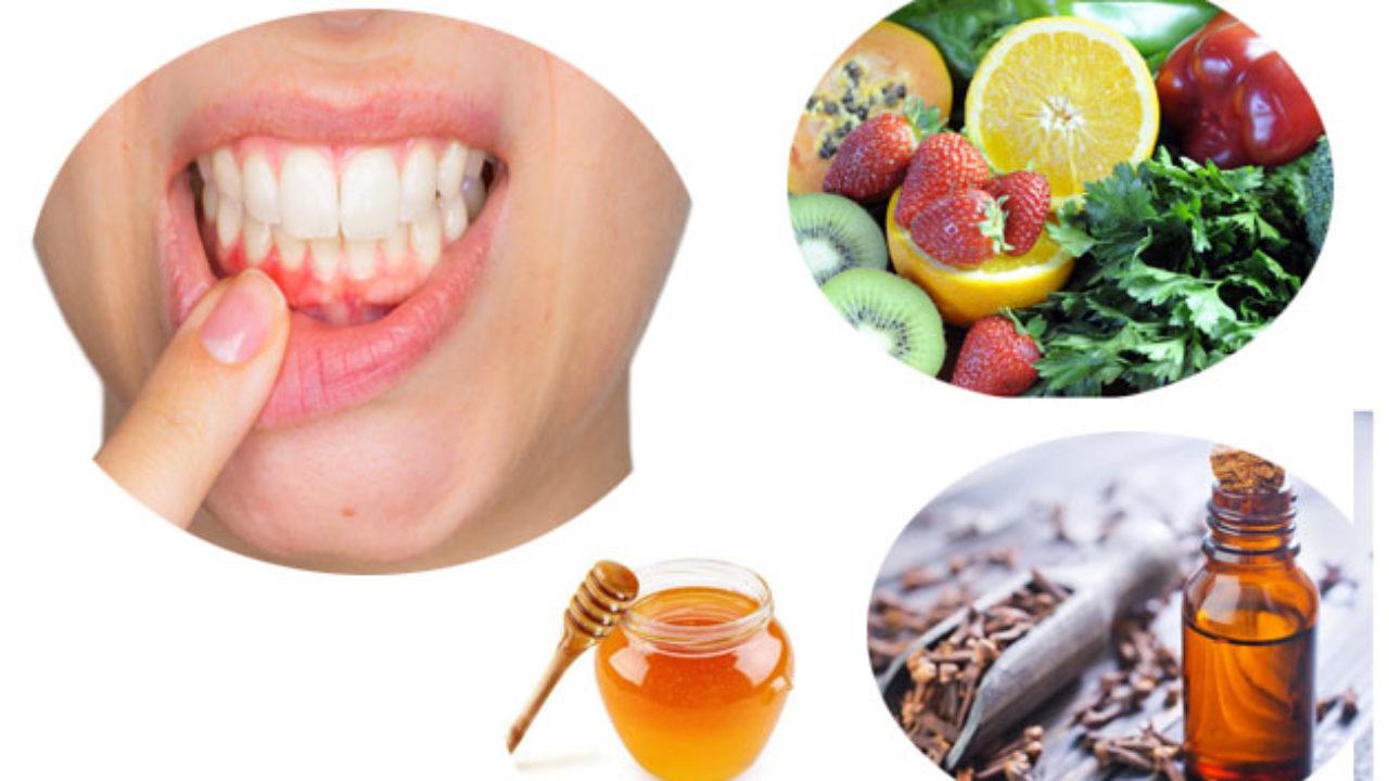 نتيجة بحث الصور عن Treatment of gingivitis at home
