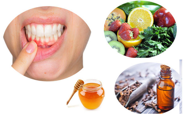Bleeding gum Home Remedies