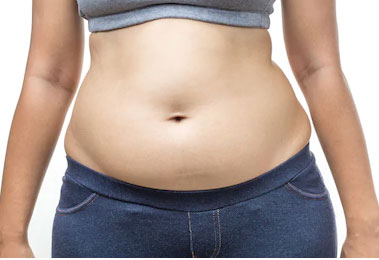What is Stomach Bloating?