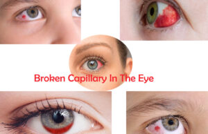 Broken Capillary In The Eye - Causes And Remedies