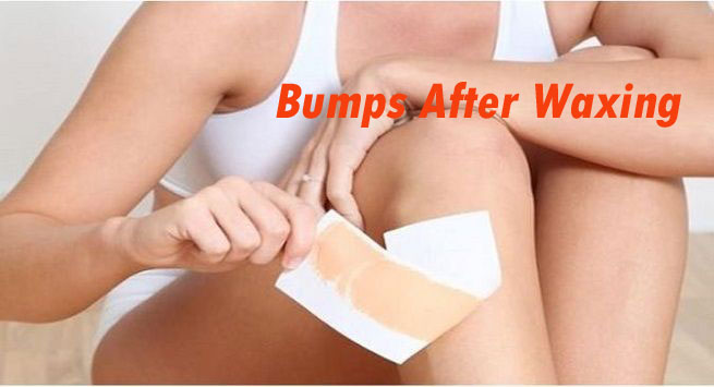 Waxing Bumps & Home Remedies for Waxing Bumps