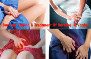 What Causes Burning Vagina? Treatment Of Burning In Vagina