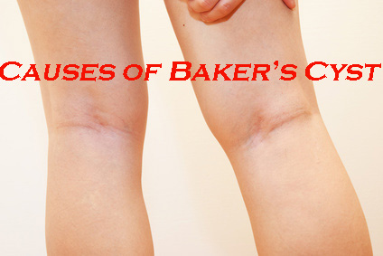 Causes of Baker's Cyst