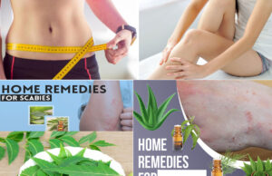 What Are The Causes Of Rashes & Bumps (Scabies) Below The Waist & Home Remedies
