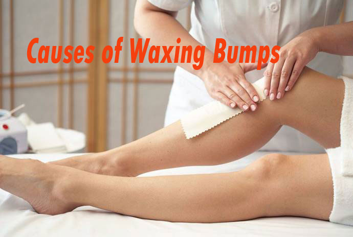 Causes Of Waxing Bumps
