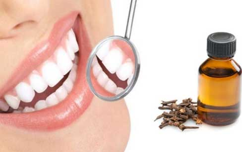 Clove Oil for Tooth Pain