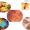 Comedones Acne : Causes and Treatment ,Precautions