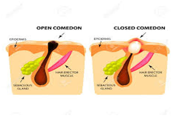 Causes of Comedones