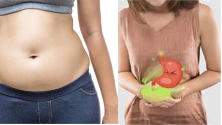 Common Causes of Abdominal Bloating