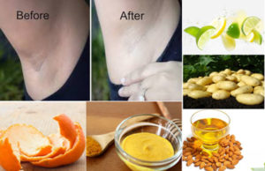 To Treat Dark Armpits Naturally