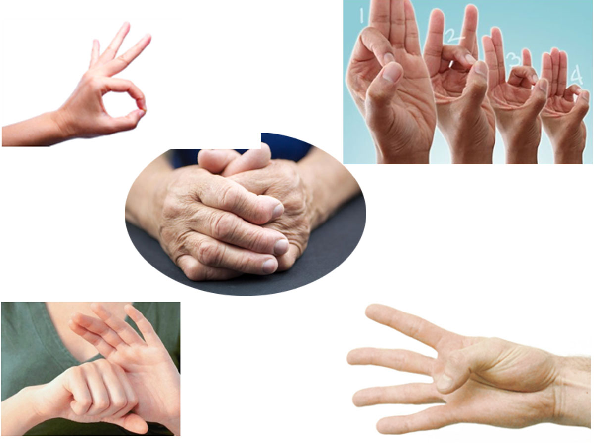 Exercises To Treat Arthritis In Hands And Increase The Mobility