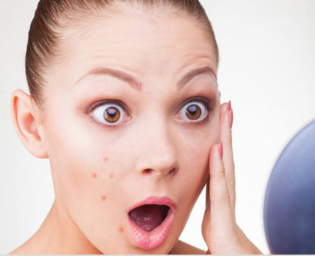 Expert's Advice: to Fade Away Acne Scars