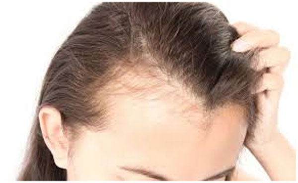 The pattern of female hair loss