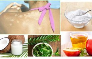 Home remedies for Tinea Versicolor or Fungal Skin Infection
