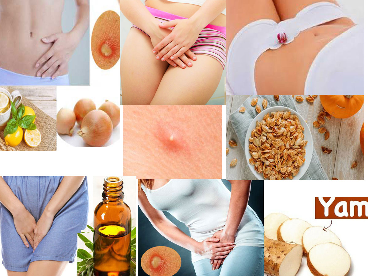 Get over from Private Part Boils with Home Remedies