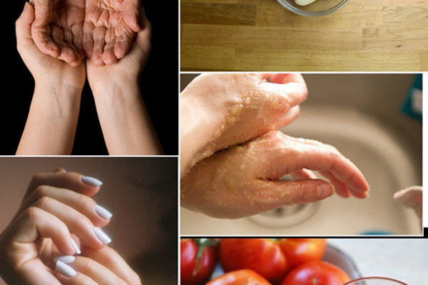 How To Remove Wrinkles From Hands At Home