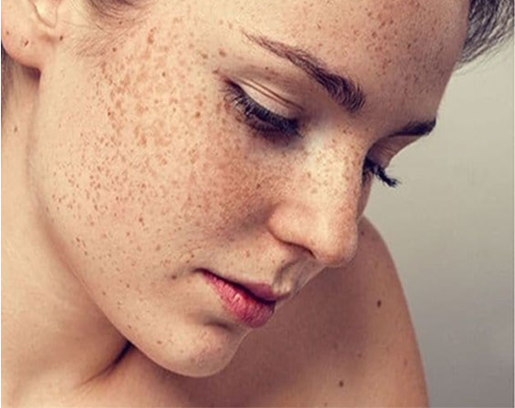 The Harmful Effects Of Blue Light On The Skin
