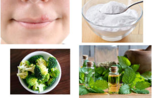 Home Remedies For Treating Herpes