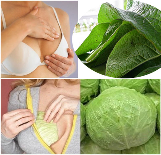 Home Remedies For Breast Engorgement