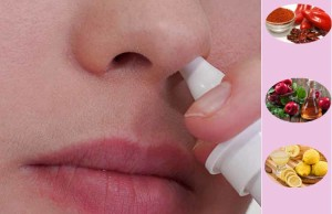 Home Remedies to Cure Nose Bleeding Instantly