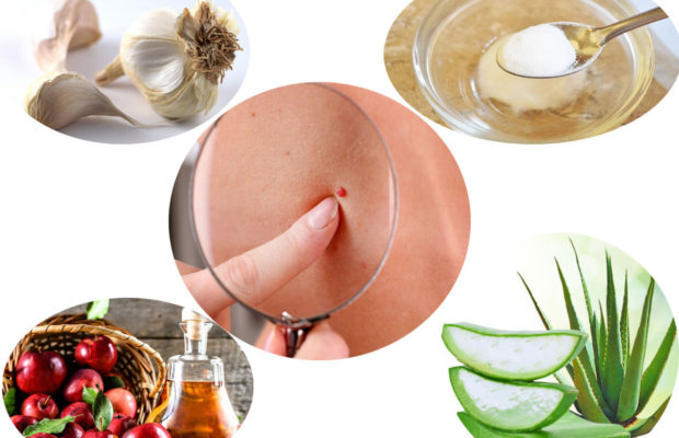 Home Remedies To Get Rid Of Red Moles