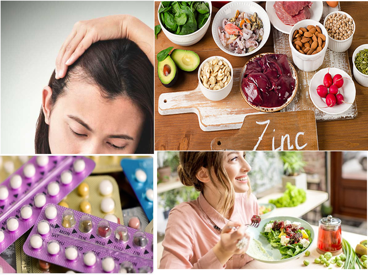 Home Remedies And Medical Treatment To Treat PCOS Hair Loss
