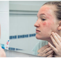 HowTo Treat Rashes On The Face
