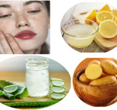 Home Remedies To Treat Hyper-Pigmentation