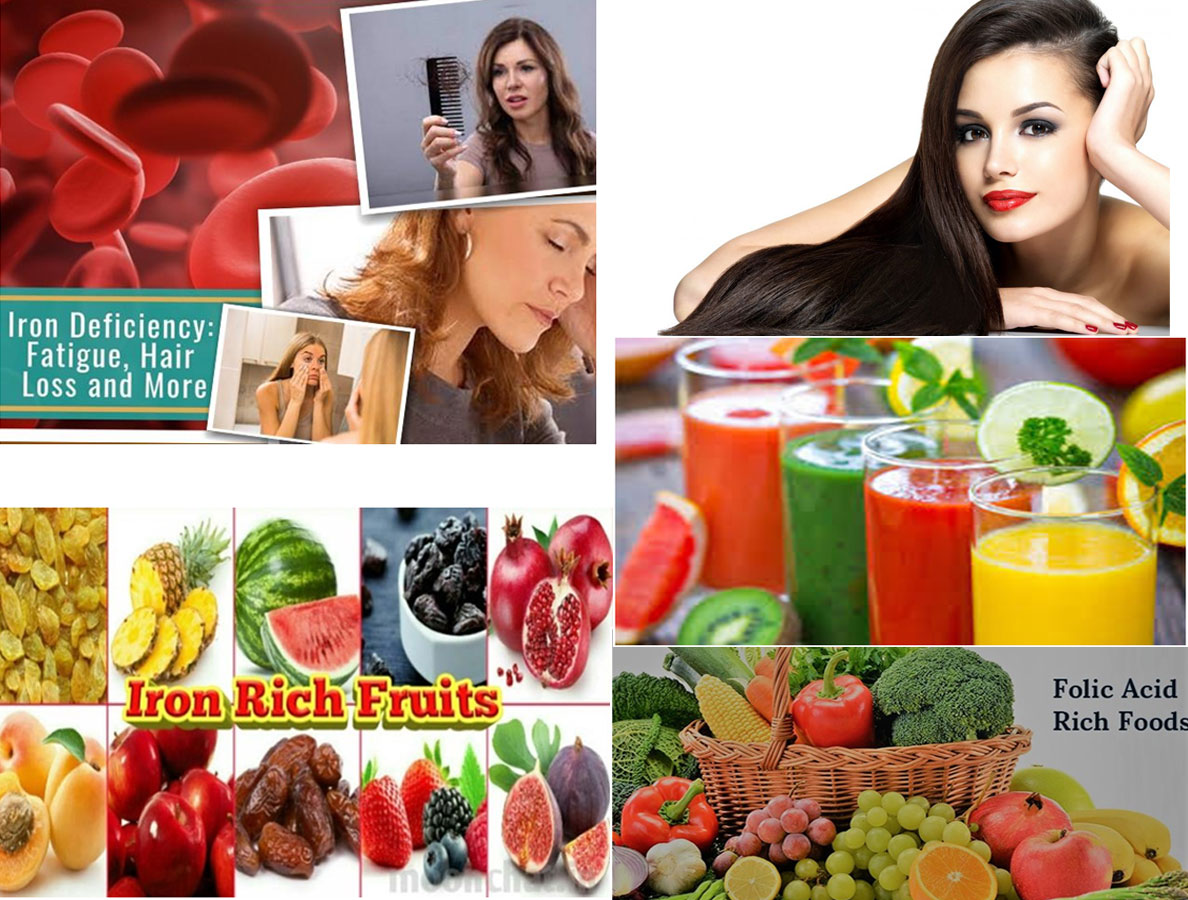 Iron Deficiency In Women: Hair Loss, Fatigue And More…| Treatment To Overcome Iron Deficiency