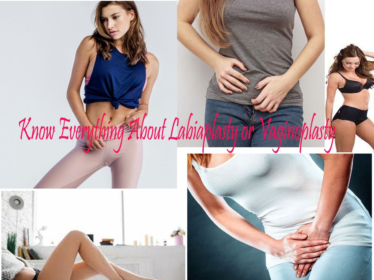 Know Everything About Labiaplasty Or Vaginoplasty