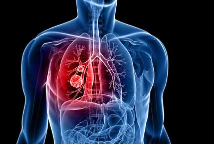 seven early symptoms of lung cancer