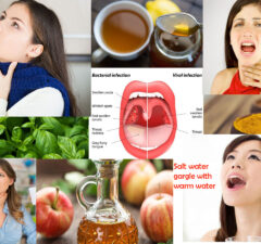 Natural Remedies to Manage Uvulitis